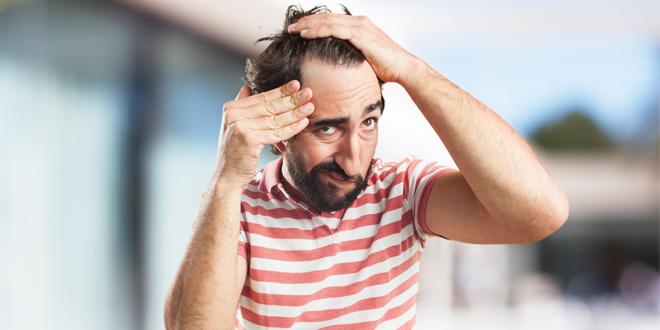 Saç Dökülmesi Nedenleri Nelerdir